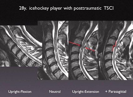 Icehockey Player with Posttraumatic Transient Spinal Cord Injury (TSCI)