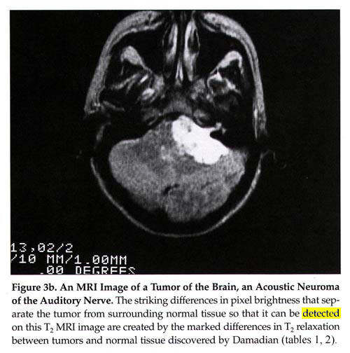 An MRI Image of a Tumor of the Brain, and Acoustic Neuroma