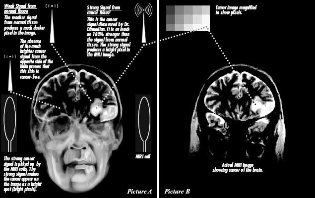 Brain scan diagram
