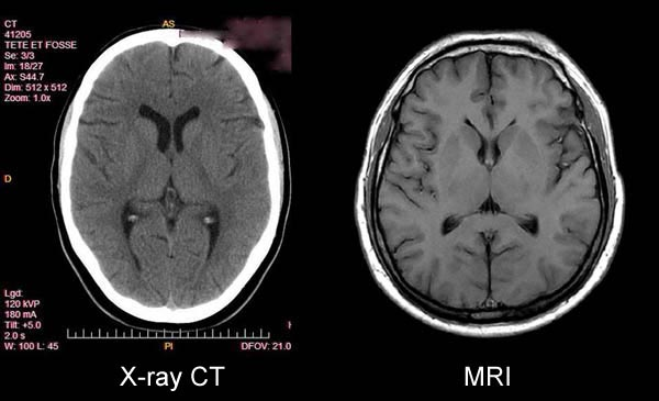 Figure 12. Note the soft tissue detail visualized in the MRI image of the brain that is not visualized by x-ray CT technology (e.g. the pronounced white matter-grey matter differentiation of the MRI, the clearly defined thalamic nuclei, and the well visualized subdural layers not visualized by CT.)