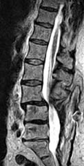 Upright, Weight-Bearing Lumbar MRI