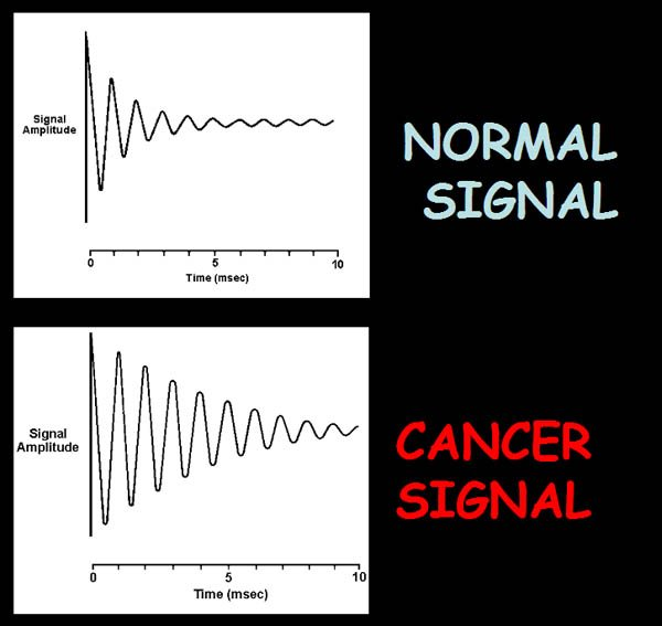 Normal Signal vs. Cancer Signal