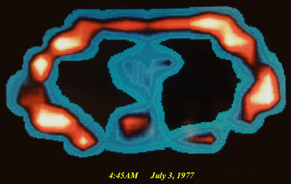 First ever MR image of the human body, a cross-section of L. Minkoff's chest at the level of T-8